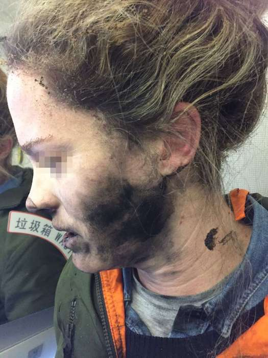 The woman suffered burns to her face and hands after her headphones caught fire during a flight to Australia. Photo courtesy: Australian Transport Safety Bureau